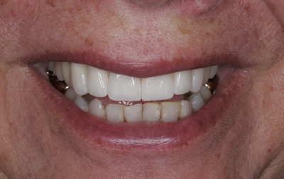 After cosmetic crowns